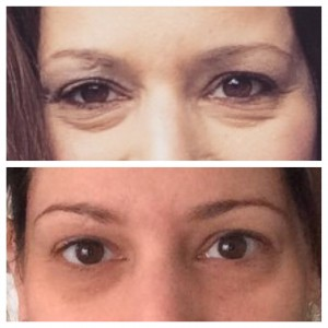 R+F Before and After